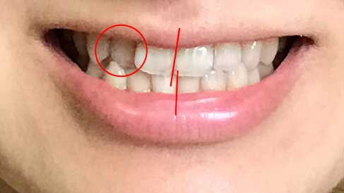 治療前の歯並び(マーク)