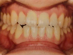 歯並び正面