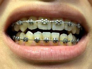 手術前 歯並び1