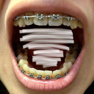 手術前 歯並び2