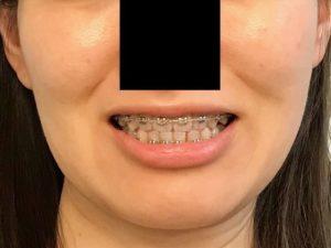 手術前正面笑顔