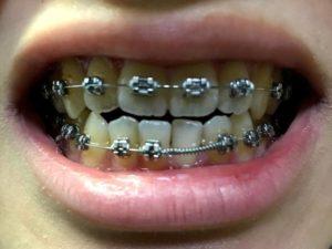 調整1回目 下の歯