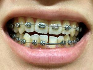 調整2回目 歯並び1
