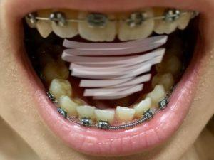 調整2回目 歯並び2