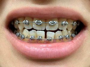 調整3回目 歯並び1
