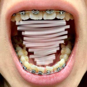 調整3回目 歯並び2