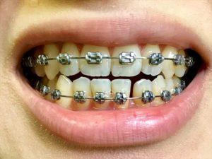 調整4回目 歯並び1