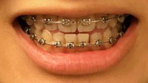 調整5回目 歯並び