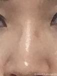 鼻パッドの跡
